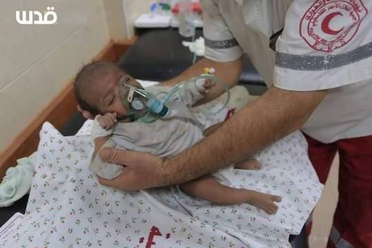Les conséquences à long termes des attaques israéliennes sur les nouveau-nés de Gaza